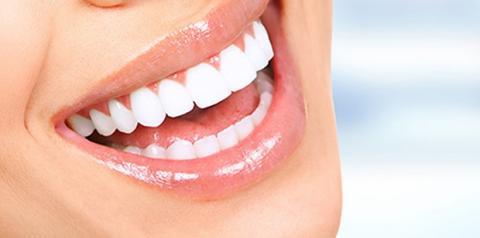 Clareamento dental se destaca entre os procedimentos estéticos