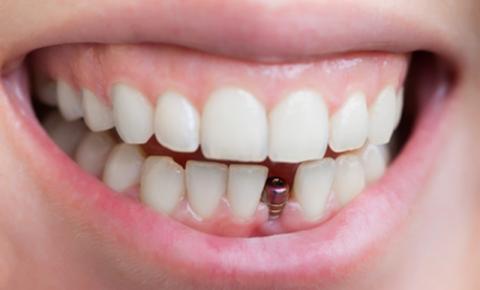 Qual é o melhor tipo de prótese e implante dentário?