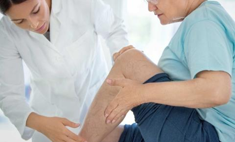 Varizes e ecodoppler: por que o ultrassom é imprescindível?