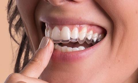 A importância da saúde dos dentes em tempos de isolamento